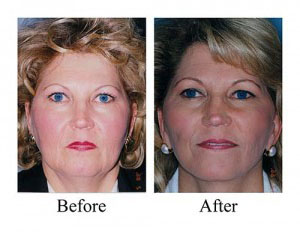 This before and after shows the results of this Houston woman's facelift, which included a neck lift.