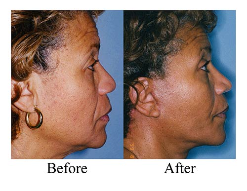 An African American female facelift patient's before and after photos.