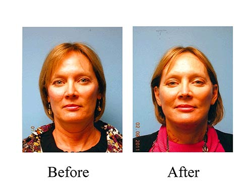 These before and after photos of this Houston female patient's mini facelift, which included a neck lift, shows great results.