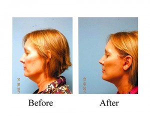 Facelift before and after photos from Houston patient at the Smith Center.