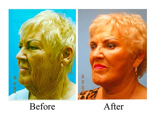 These side view before and after photos for this Houston co2 laser treatment patient shows the results of laser resurfacing.