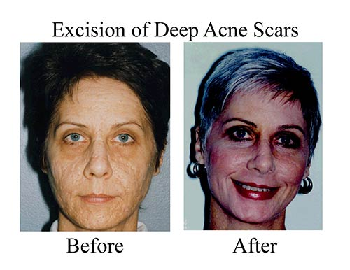 This Houston patient's before and after photos show the results of co2 laser resurfacing with deep acne scars.