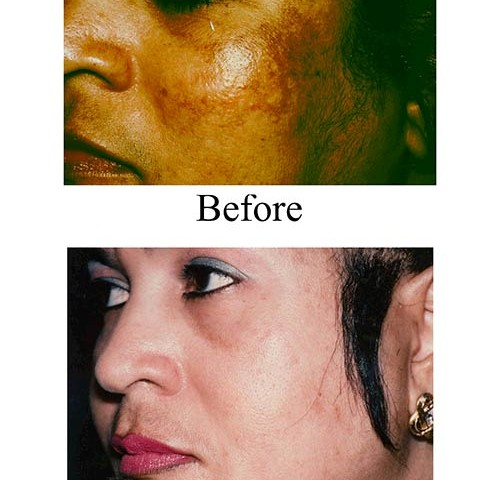Take a look at this Houston patient's chemical peel before and after photos from the Smith Center.