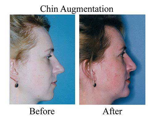 This is a before and after side view of a Houston patient who received a chin implant.