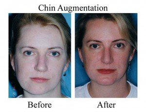 Due to chin deformity, this Houston patient came to the Smith Center for a chin augmentation (chin implant).