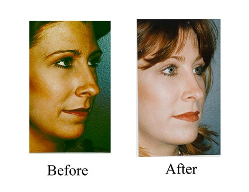 This Houston woman requested a nose job to correct the tip of her nose. Her rhinoplasty before and after photos show her great results.