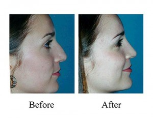 This Houston woman requested a nose job to lower the bridge of her nose.