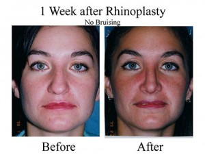 This young Houston woman required a nose job (rhinoplasty) to correct the bridge of her nose.