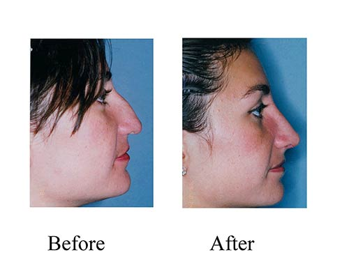 This Houston woman received a nose job at the Smith Center. See the results from her rhinoplasty before and after photos.
