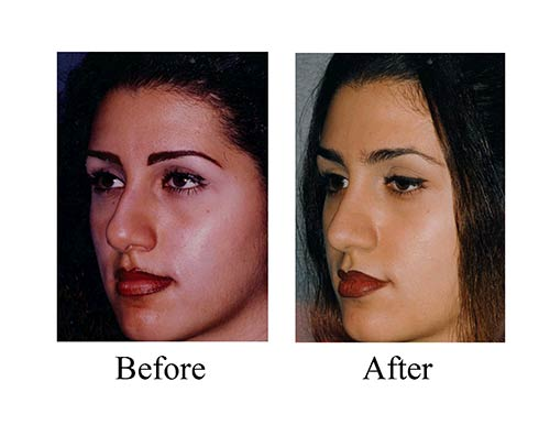 Ethnic rhinoplasty before and after photos of Houston female nose job patient.