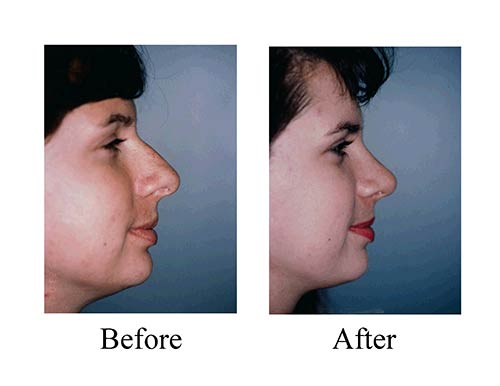 Rhinoplasty before and after sideview of Houston female nose job patient.