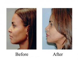 This female ethnic rhinoplasty patient needed a more refined dorsal hump, which was done successfully as shown through these nose job before and after photos.