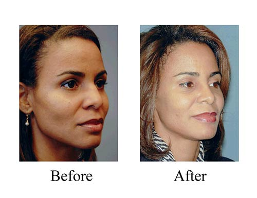 This Houston female ethnic rhinoplasty patient needed a more refined dorsal hump, which was done successfully as best seen through these rhinoplasty before and after photos.