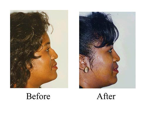 Rhinoplasty before and after sideview photos of female ethnic nose job patient.