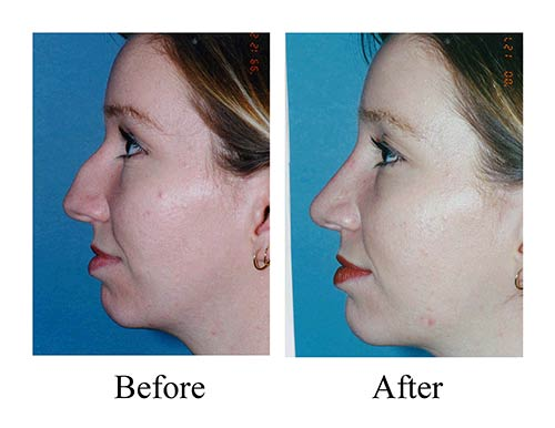 Rhinoplasty before and after photos of Houston female nose job patient with large dorsal hump.