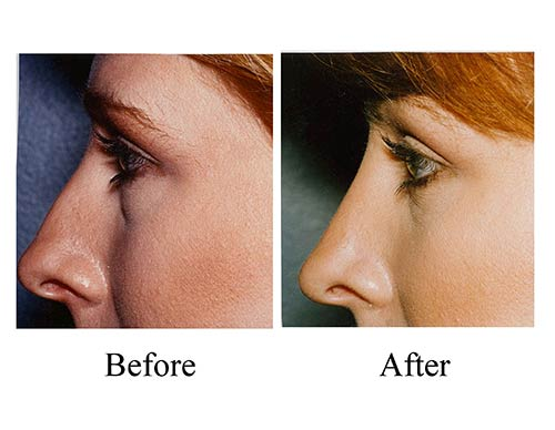 Nose job before and after photos of female rhinoplasty patient's under-projected nose.