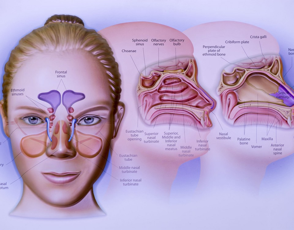 Visual of candidate for migraine treatment.