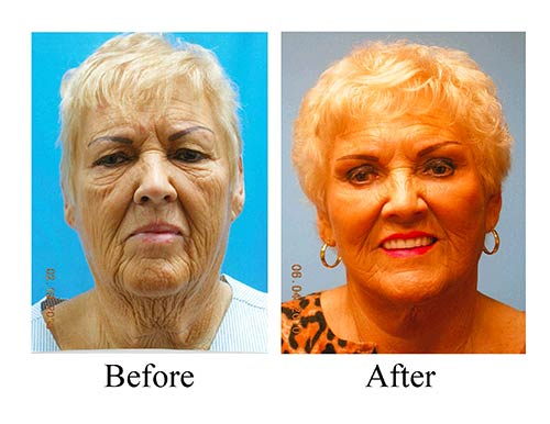 These co2 laser treatment before and after photos on this Houston female patient shows the results of laser resurfacing.
