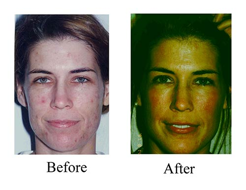 See the results of this Houston female patient's CO2 laser before and after photos.