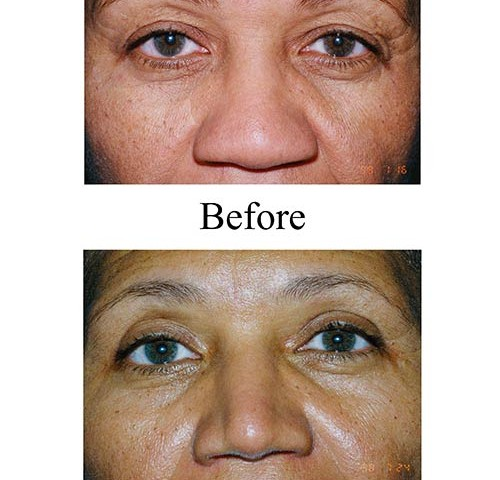 This Houston woman presented with a flattened nose as is common among many ethnic rhinoplasty patients. Her nose job before and after photos show how the nose was raised.
