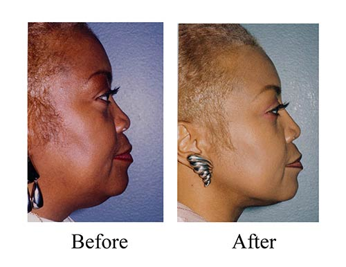 Liposuction before and after photos of female ethnic facial liposuction, which included neck liposuction.