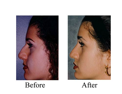 Ethnic rhinoplasty before and after photos of female nose job patient from Houston.
