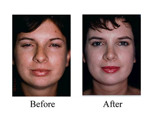 Female rhinoplasty patient Rhinoplasty before and after photos of nose job patient with bulbous tip.