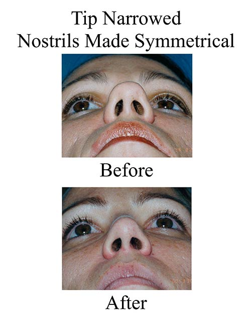 This Houston female rhinoplasty patient required a nose job to make her nostrils symmetrical and correct her boxy tip nose.