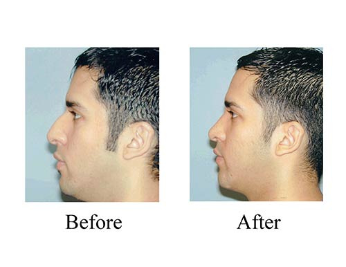 These side view ethnic rhinoplasty before and after photos show great results for this Houston patient.