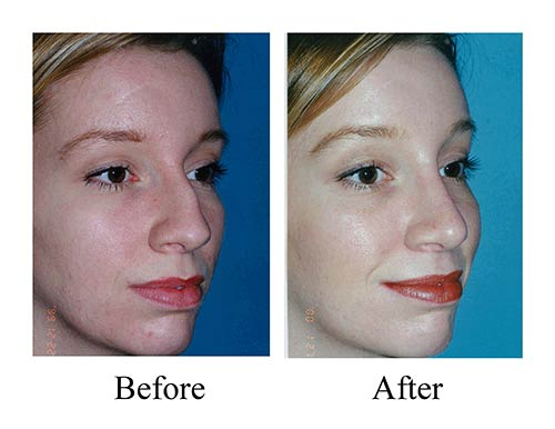 Rhinoplasty before and after photos of female nose job with large dorsal hump.
